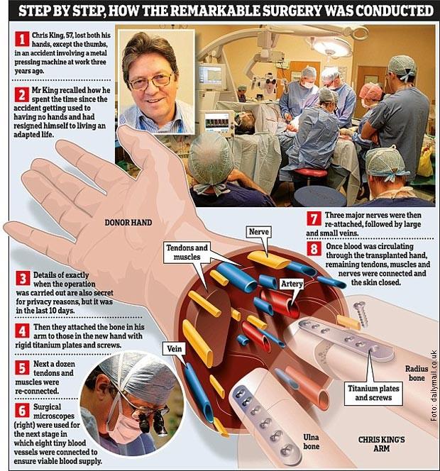 Slozena-operacija