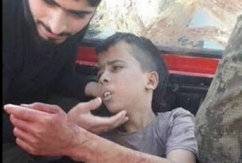 dete-siriija-obezglaveno-03