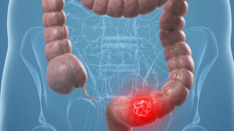 rak na debelo crevo